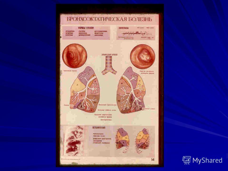 A szív diagnosztikai módszereinek leírása: auszkuláció, ütődés és tapintás