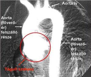 lüktető nyaki hipertónia