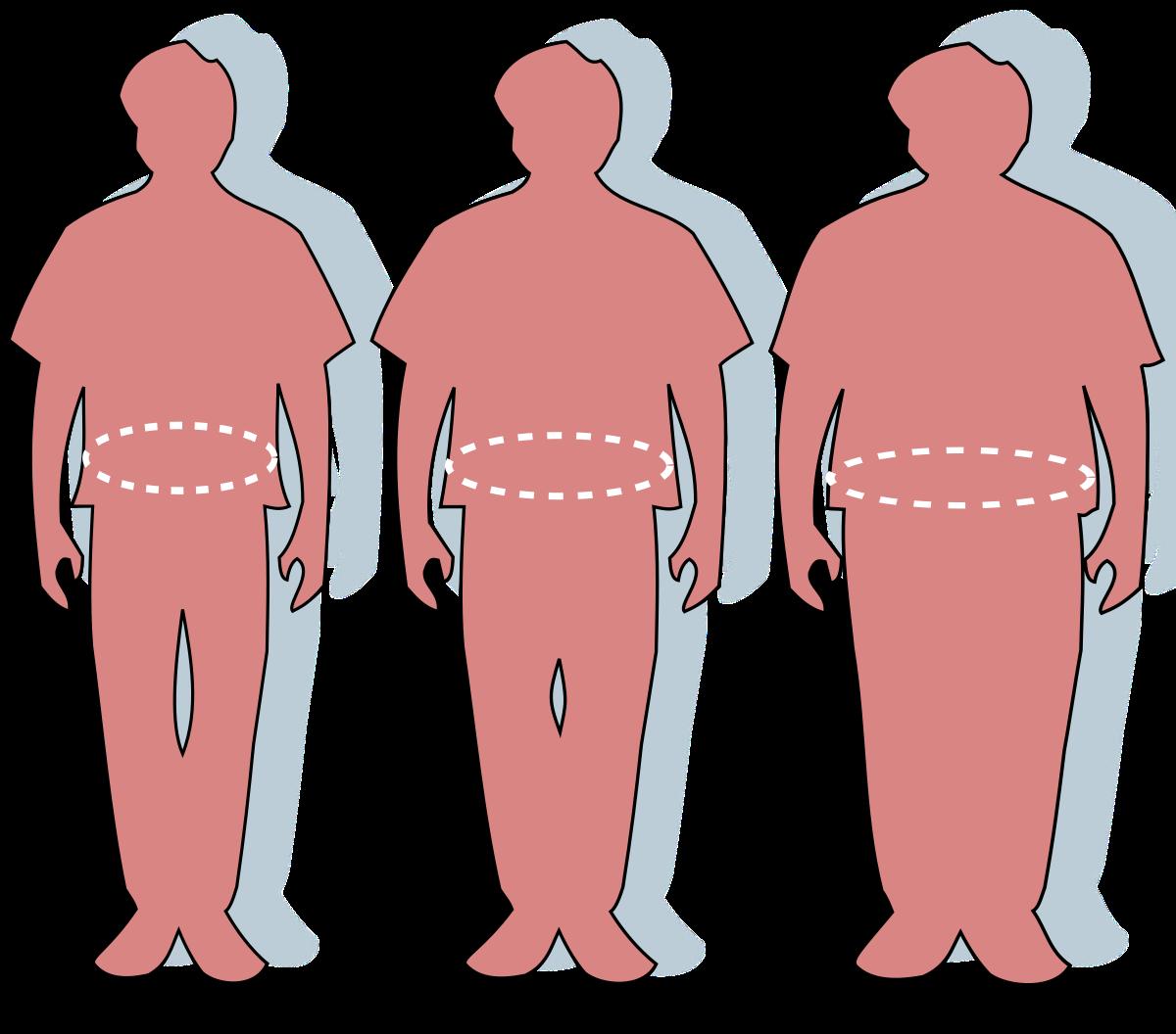 2 fokú elhízás és magas vérnyomás