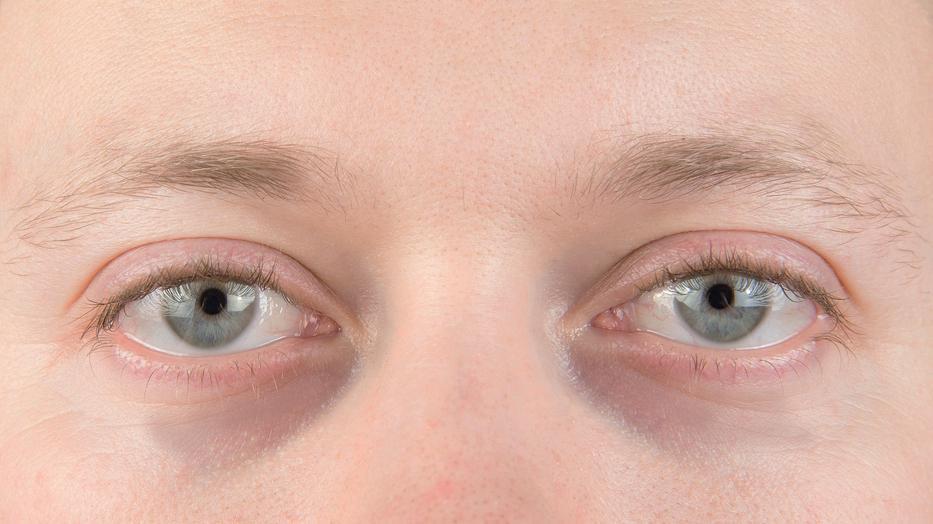 karikák a szem alatt magas vérnyomásban a vérkeringés kis körének magas vérnyomása