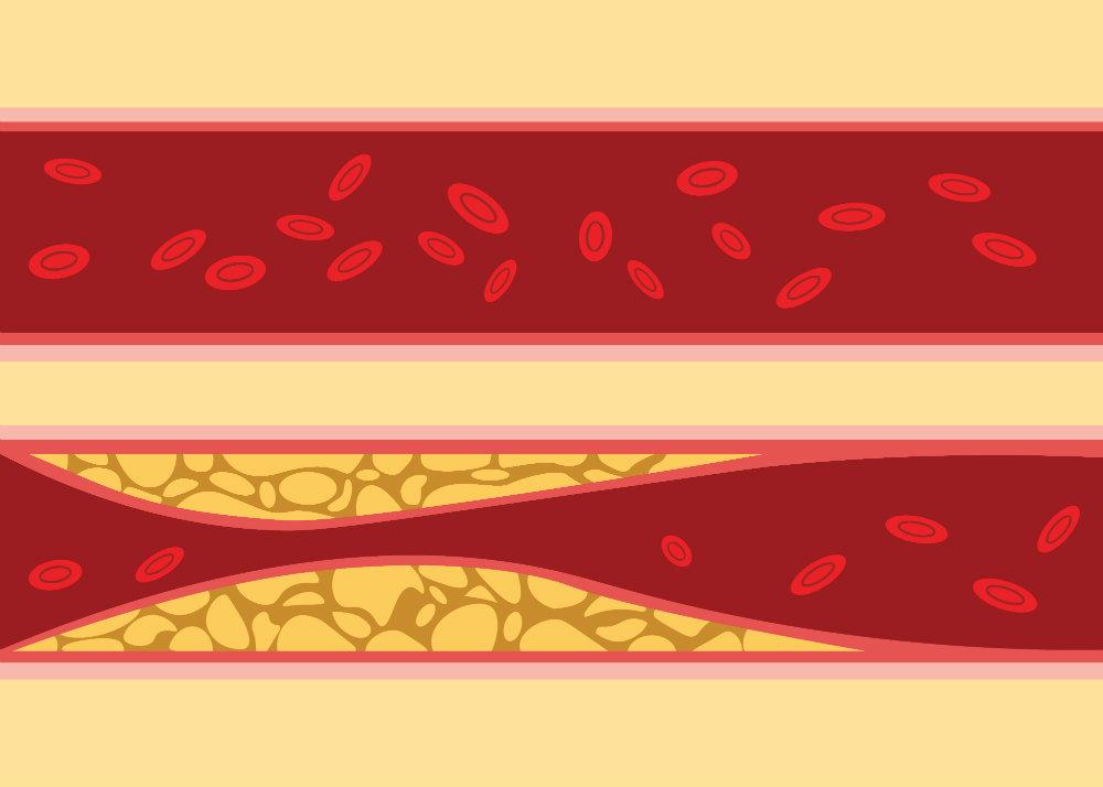 a vérellátás előnyei a magas vérnyomás esetén magas vérnyomás hogyan nyugtassa meg magát