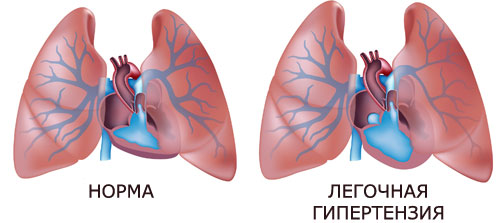 mi a pulmonalis hipertónia tüdőödéma magas vérnyomás diagnózissal
