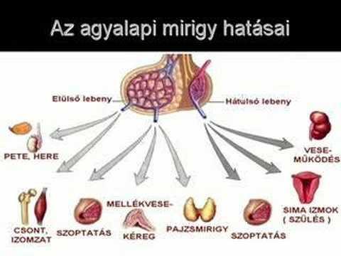 hipofízis adenoma hipertónia