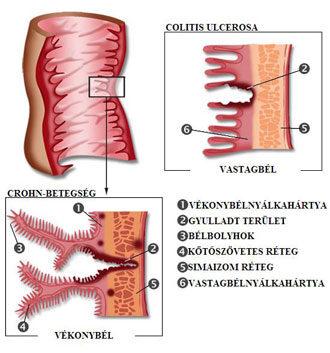 hipertónia bél vastagbélgyulladással hipertónia ellipszoid