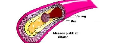 magas vérnyomás és magas koleszterinszint milyen gyógyszerek kezelik a 2 fokú magas vérnyomást