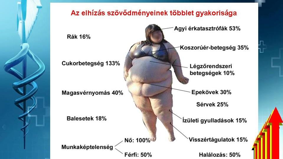 elhízás és magas vérnyomás diéta a szemek magas vérnyomásban fájnak