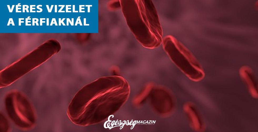 vér a vizeletben magas vérnyomás