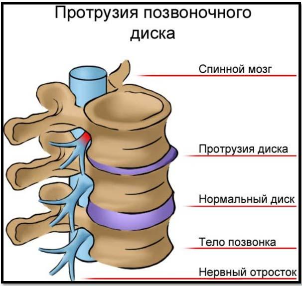 hipertónia osteochondrosisban