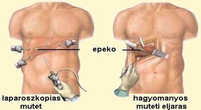 magas vérnyomás és eltávolított epehólyag