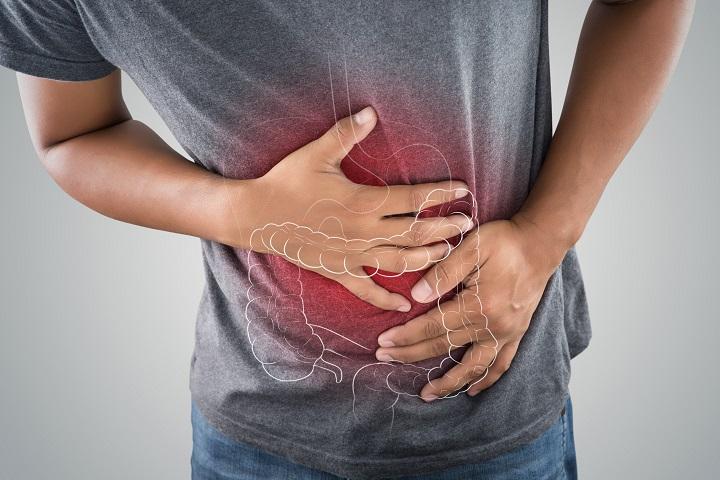hipertónia bél vastagbélgyulladással