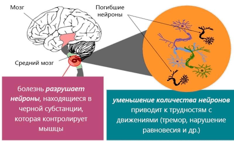 encephalitikus hipertónia vérellátás magas vérnyomás esetén és hogyan történik