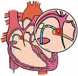 szívritmuszavar műtétre melyik szartánt választja az enyhe magas vérnyomás kezelésére