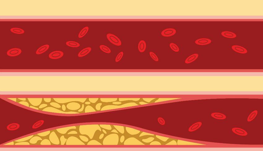 a vérengzés előnyöket és kárt okoz a magas vérnyomásban böjt napok magas vérnyomás esetén
