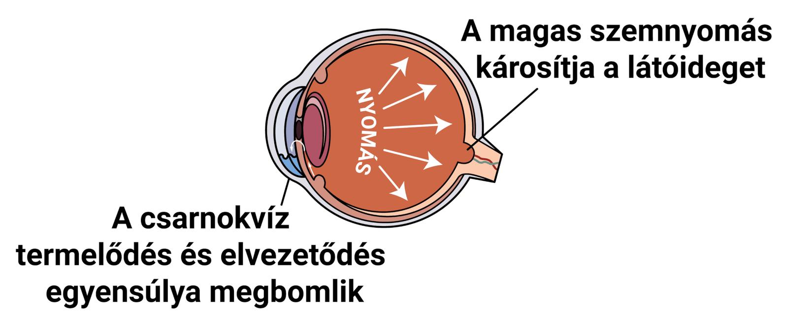 Glaukóma (zöldhályog)