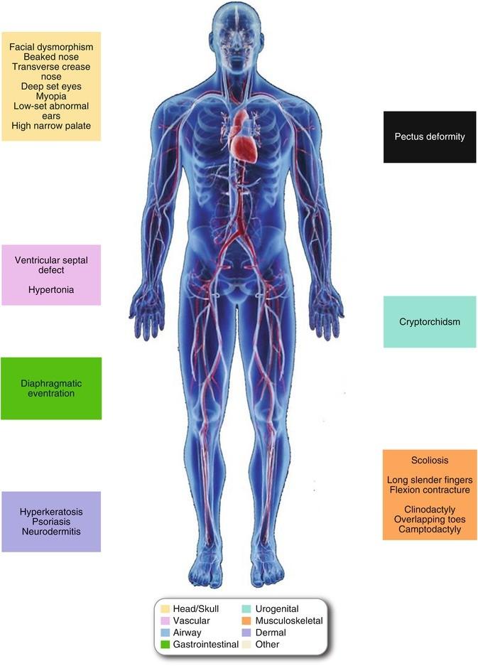 aorta aneurysma hipertónia hogyan lehet a 3 fogyatékosság-csoport magas vérnyomásához jutni