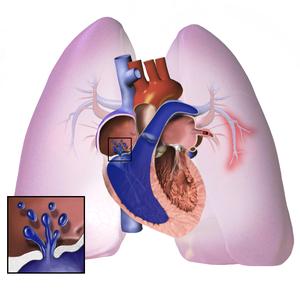 mi a pulmonalis hipertónia at1 blokkolók magas vérnyomás esetén