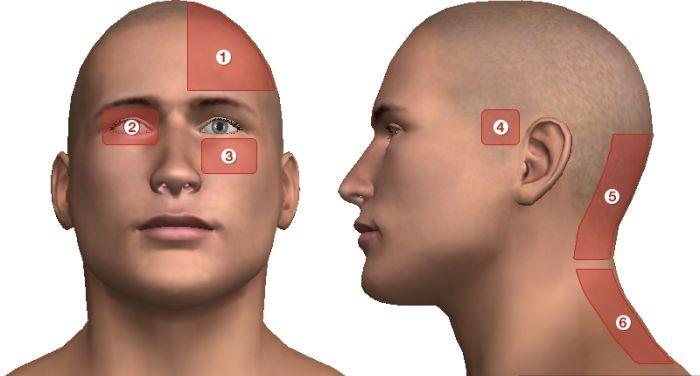 magas vérnyomással fejfájással