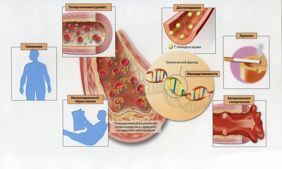magas vérnyomás - Keresés | eLitMed