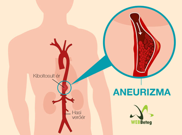 magas vérnyomás aneurysma