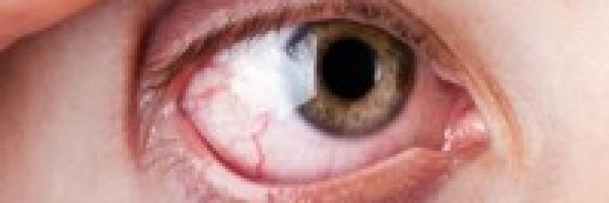 magas vérnyomás esetén mi lehet a szemével