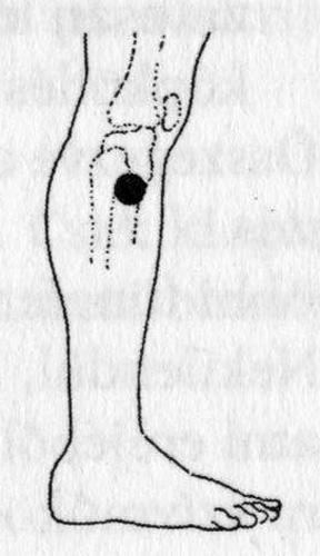 Fül-akupunktúra - franciskakft.hu