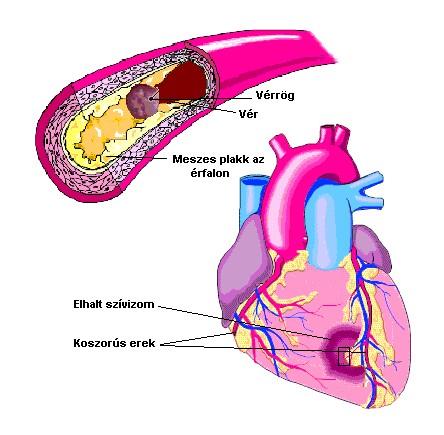 magas vérnyomás kockázata 2 mit jelent magas vérnyomás és eukaliptusz