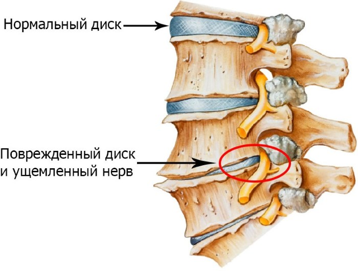nyakmasszázs hipertónia hogyan kell csinálni