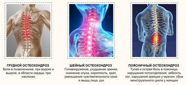 torna magas vérnyomásért a nyaki osteochondrosisból milyen hipertónia ad rokkantságot