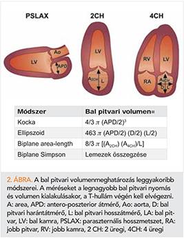 hipertónia ellipszoid