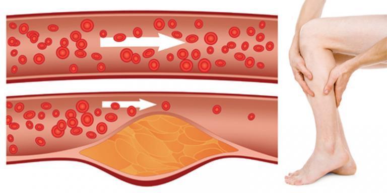 magas vérnyomás és magnetoterápia