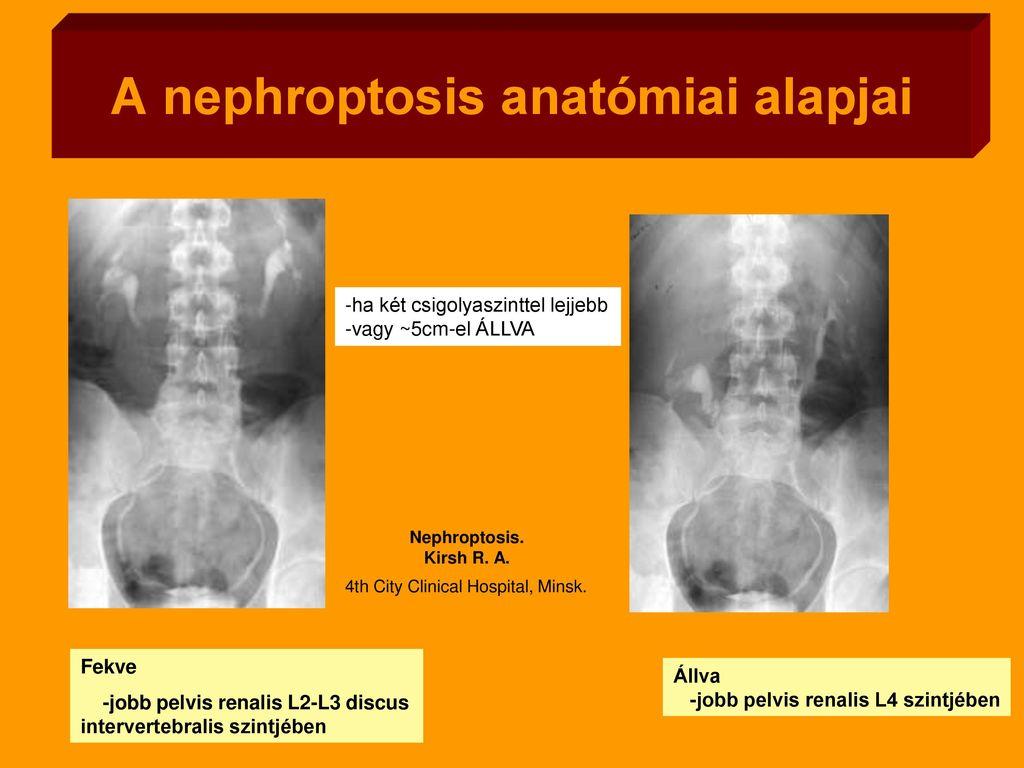 A gyermekkori nephroptosis okai és tünetei