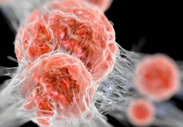 a magas vérnyomás bioptron kezelése