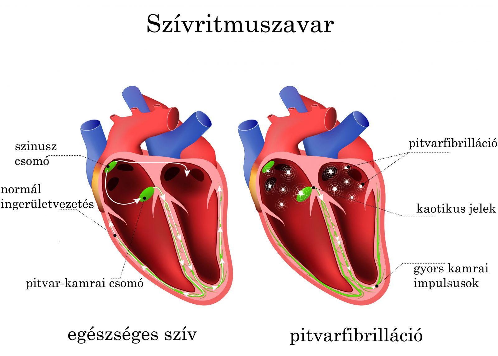 aritmia tachycardia magas vérnyomás