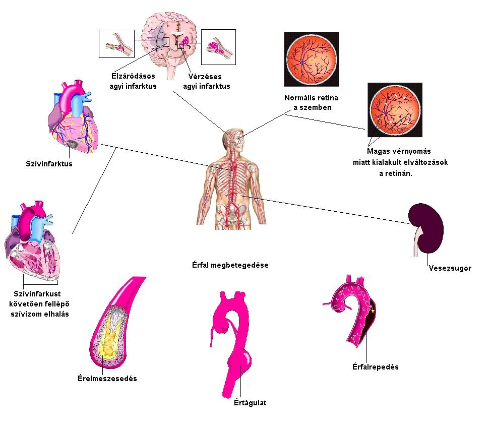 vannak-e a magas vérnyomás okai orrvérzés oka magas vérnyomásban
