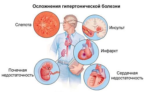 pulzus hipertóniával 1 fok vizelet hipertónia kezelése